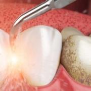 Снятие зубных отложений