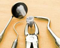 Сложное удаление зуба | Полистом