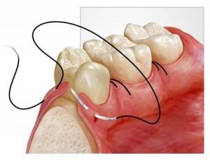 Снятие швов – Хирургическая стоматология