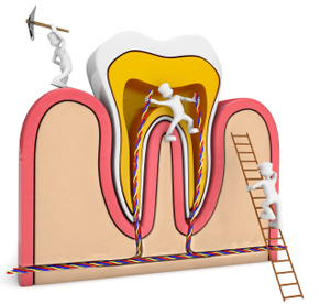 services-root-canal