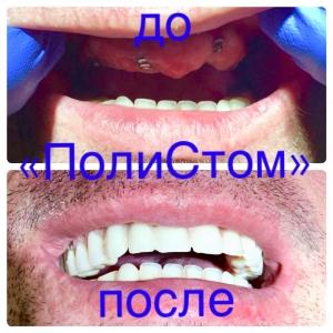Пример имплантации зубов