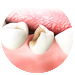 Удаление стенки зуба
