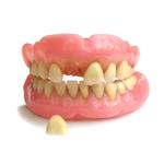Выпал зуб из протеза