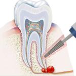 Зубоохраняющие операции